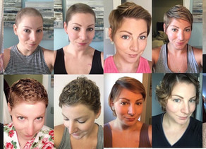 Guest Blog | Tips for Hair Growth Post-Chemo