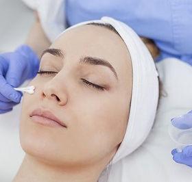peeling-facial-clinica-dermatologia-madr