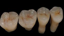 MM Dental Labs 1