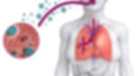 legionella, virus, malattie, airwash, lavaggio, aria sana, manutenzione, climatizzatore, aria condizonata
