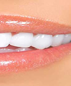 TEETH WHITINING