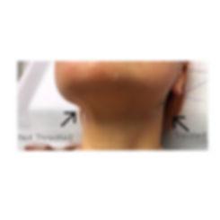 Und chin treatment to sharpen jaw & tigh