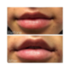 Before & After of beautiful lip flip usi
