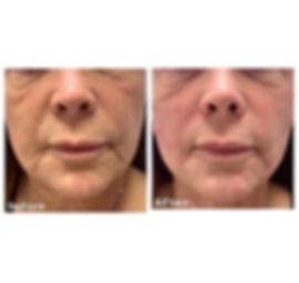 Midface Lift 😍 slimming, lifting, resto