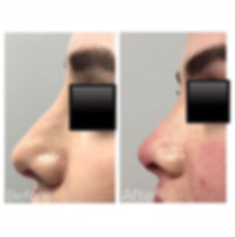 Easily my favorite procedure_ Nose Tip L