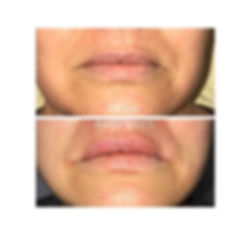 Get the natural looking lip boarder lift