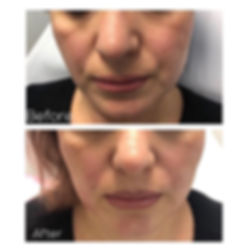 Midface treatment is especially effectiv