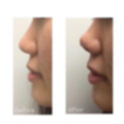 Nose tip lift to give it a pointy, lifte