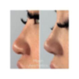 Non Surgical Nose Job using PDO threads
