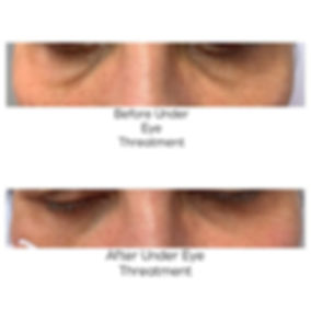 Under eye treatment using combination of