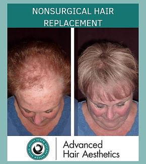 Advanced Hair_NonSurgicalHairReplacement