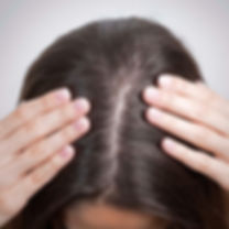 hair loss trichology.jpg