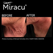 miracu neck lift.jpg