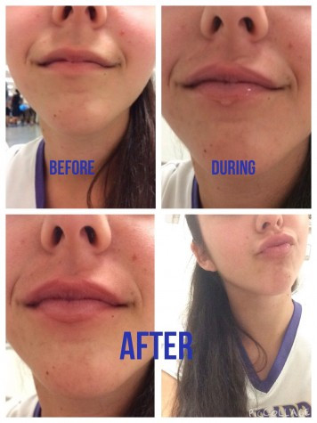 BEAUTY IS PAIN: Freshman Mackenzie Meyers tries the Kylie Jenner challenge, causing her lips to drastically increase in size. Meyers later said her lips were burning and stinging the whole time until the swelling went down.