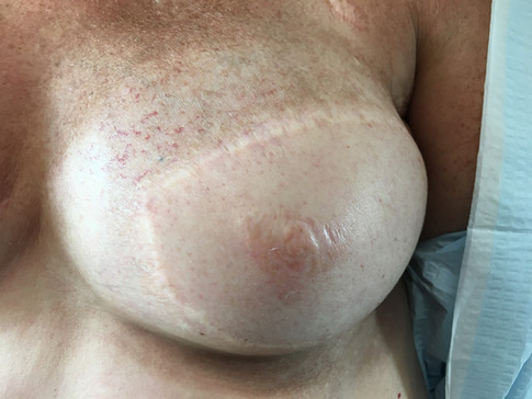Sept 2018 - Right Breast Before
