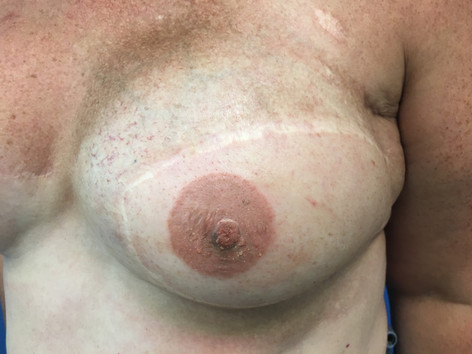 Sept 2018 - Right Breast After