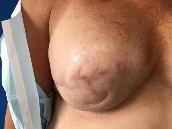 Sept 2018 - Left Breast Before