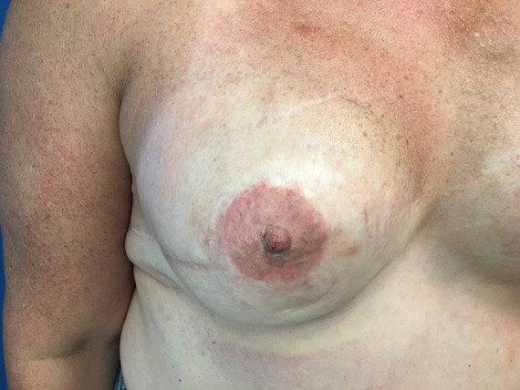 Sept 2018 - Left Breast Before