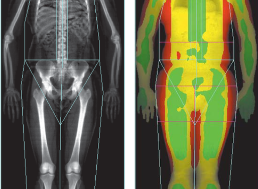 Measuring Body Composition - Part 1 of 3