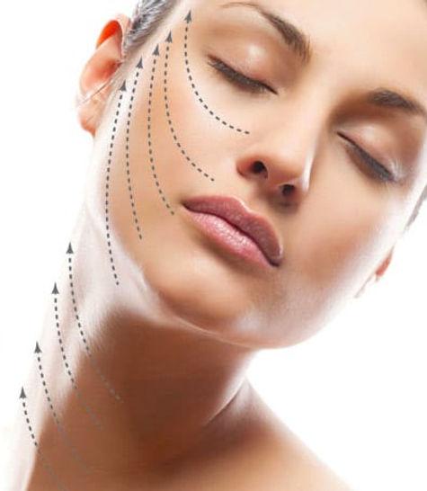 Thread-Lift-Thread-FaceLift-Treatment-in