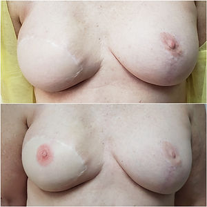 3D nipple and areola.jpg