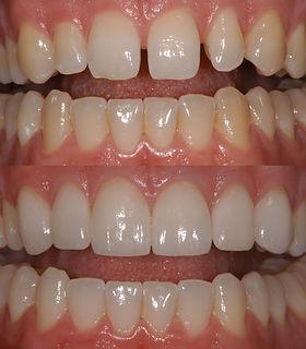 veneers, teeth alignment, seven hills smile excellence dentistry