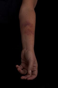 SFX bruising