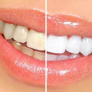 What Are Your Teeth Whitening Options?