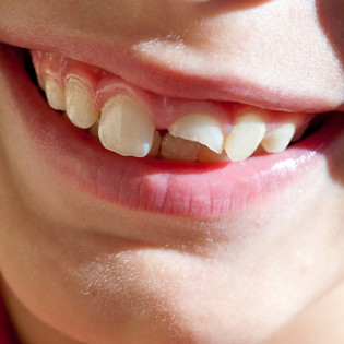 Dental Emergencies & Injuries