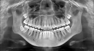 What To Know About Dental X-Rays