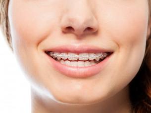 Benefits of Adult Orthodontics