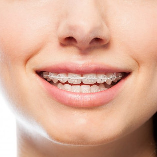 Benefits of Adult Orthodontics