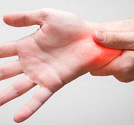 Do I Have Carpal Tunnel Syndrome?