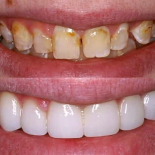 What are Dental Veneers and How Can You Benefit from Them?