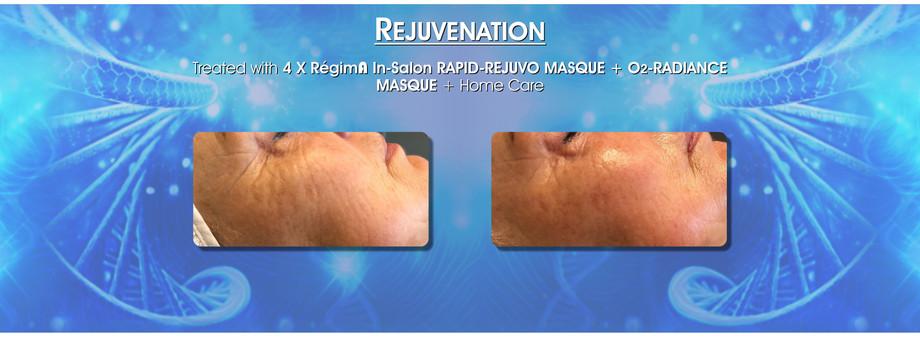 Skin care rejevetation