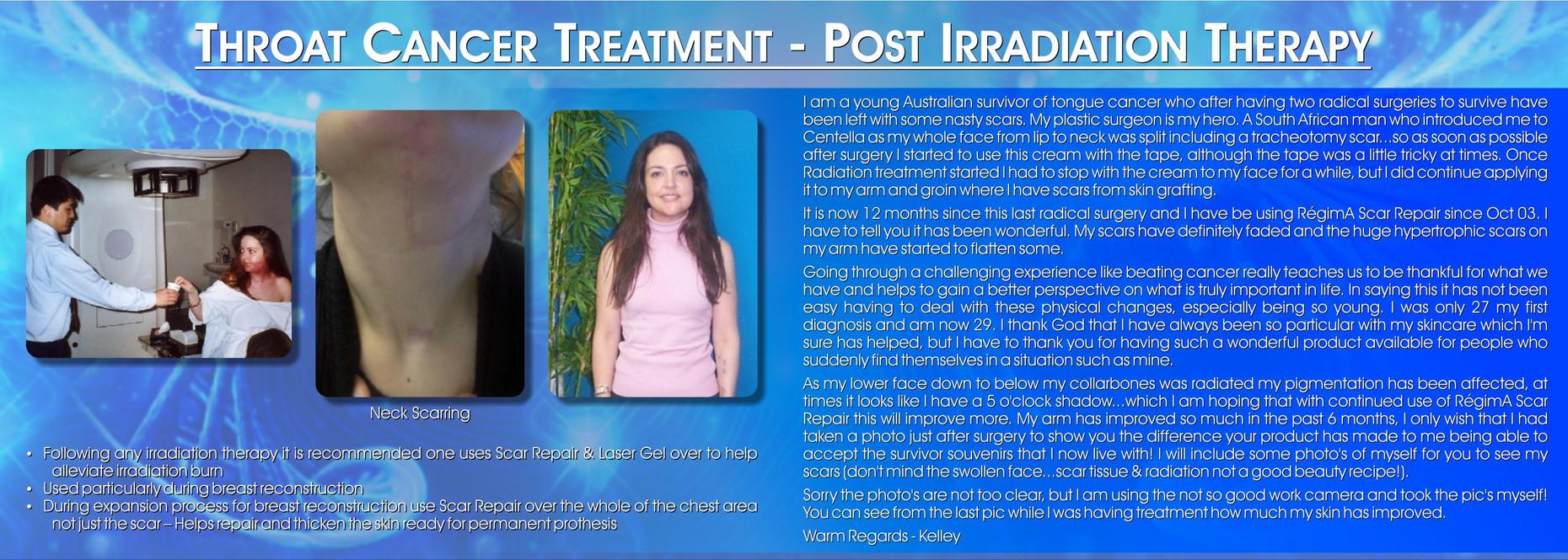 Throat Cancer Treatment