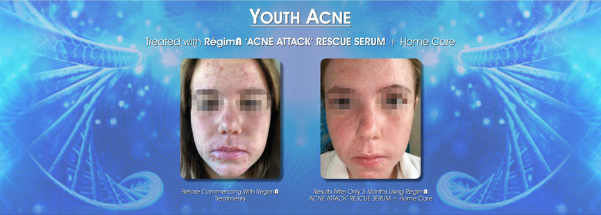 Youth Acne Treatment
