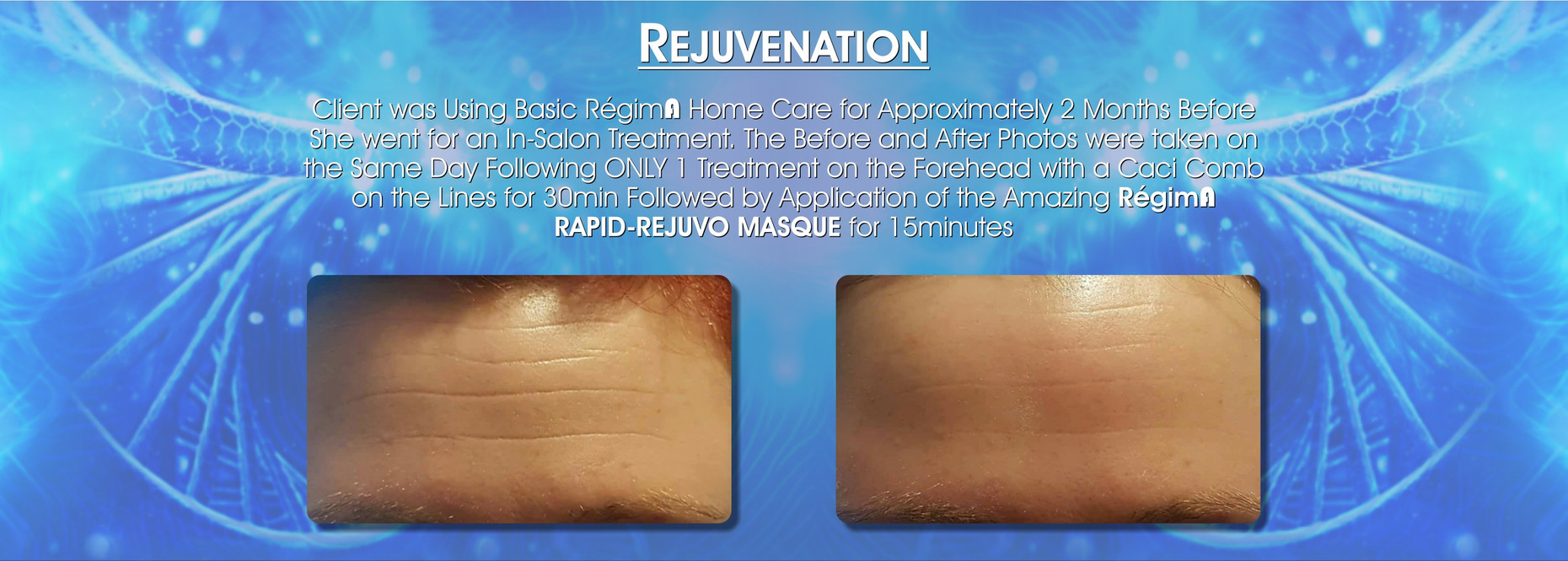 RegimA-Zone-Before-After-Testimonials-fo