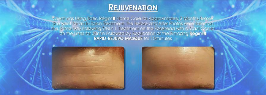 RegimA-Zone-Before-After-Testimonials-fo