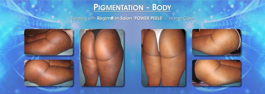 Body Pigmentation