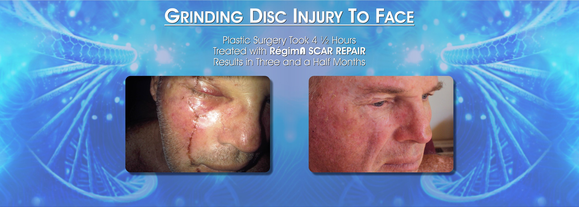 Grinding Disc Injury