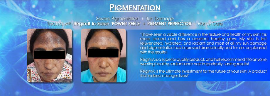 Pigmentation