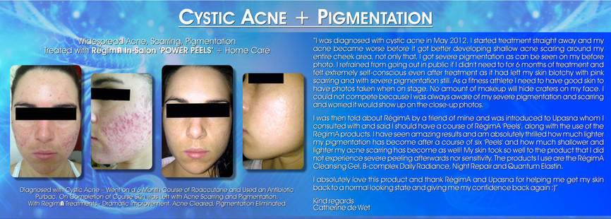 Cystic Acne + Pigmentation Treatment