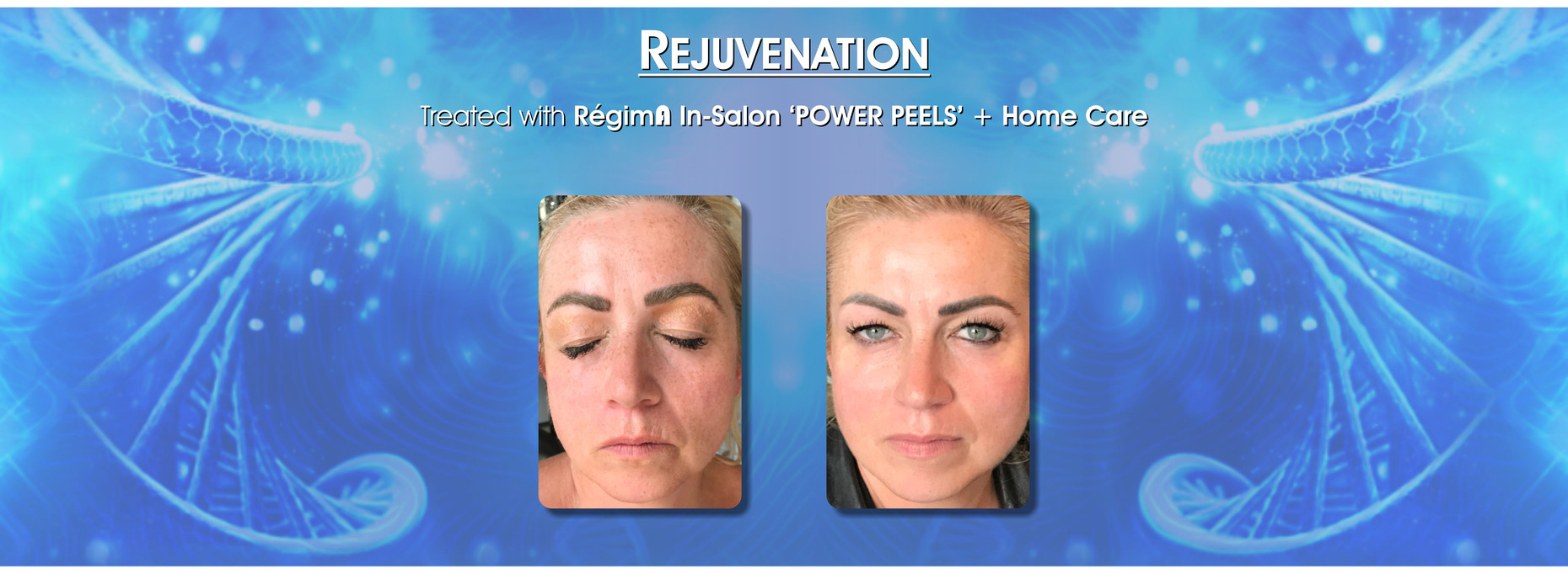 Skin Care rejuvenation