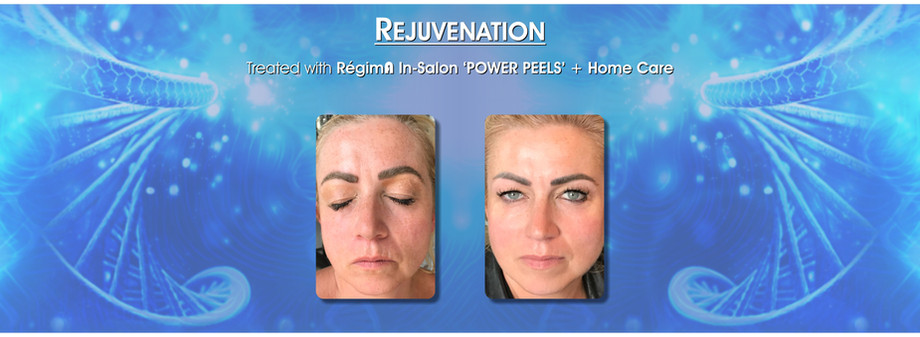 Skin Care rejuvenation