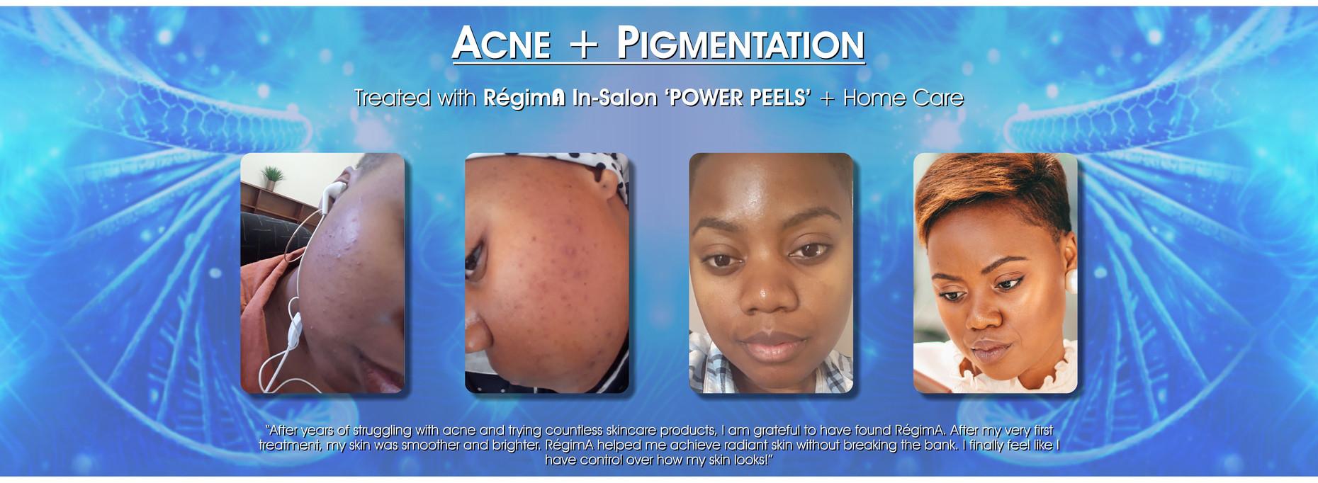 Acne & Pigmentation
