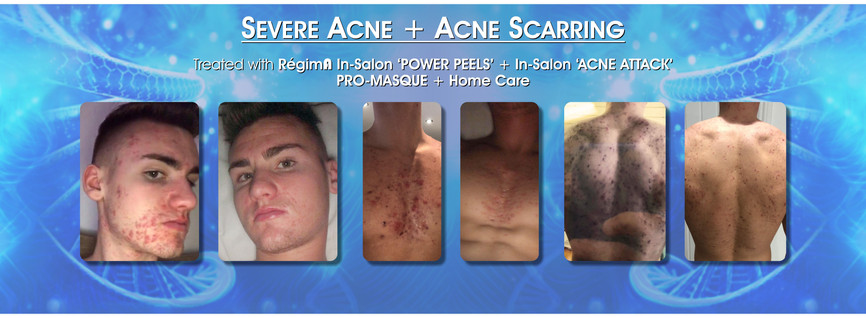 Severe Acne + Acne Scarring Treatment