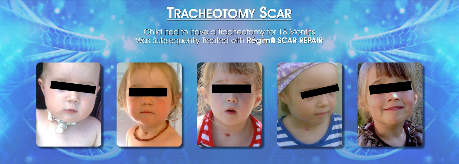 Tracheostomy Scar