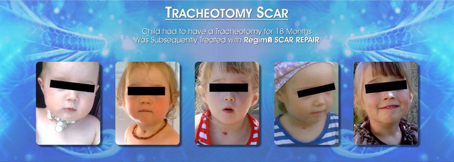 Tracheostomy Scar