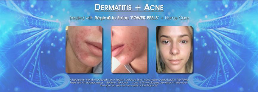 Dermatitis & Acne Treatment